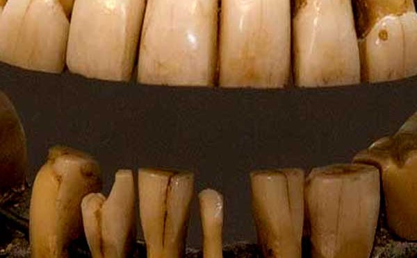 The Wooden Teeth That Werent Past Present Podcasts Colonial